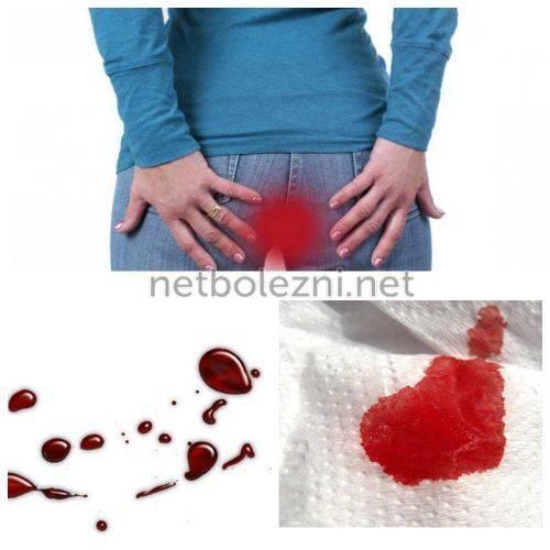 Как остановить геморроидальное кровотечение - медикаментозные и народные средства, ванночки и компрессы