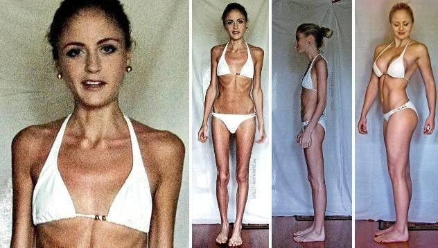 от ожирения до анорексии