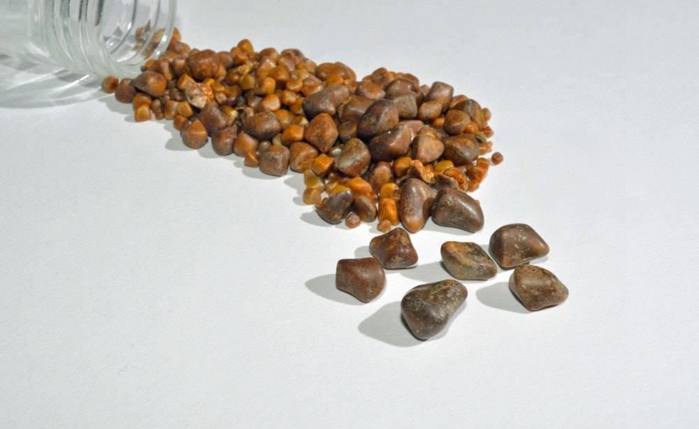 камни в печени симптомы