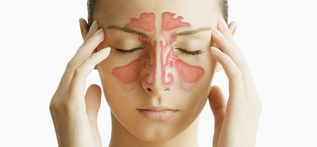 Болезни носа и околоносовых пазух.насморк (ринит).