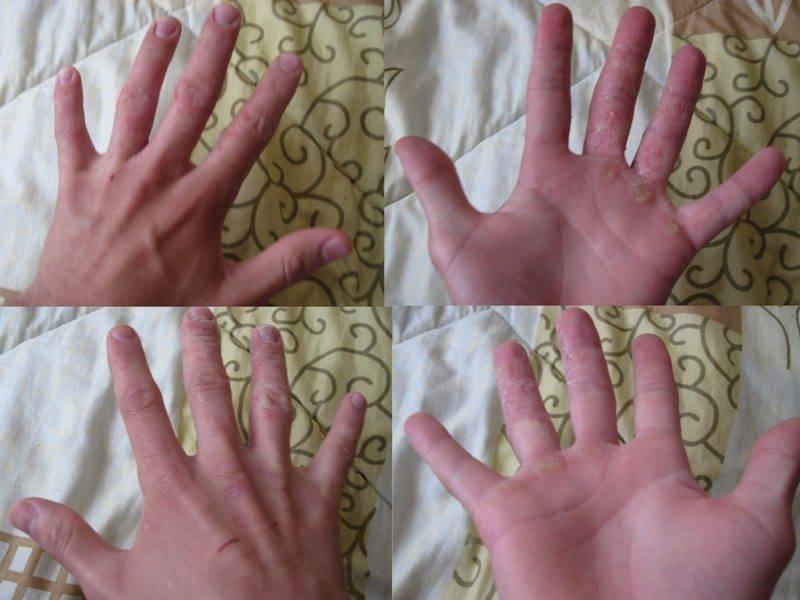 проявление псориаза на руках