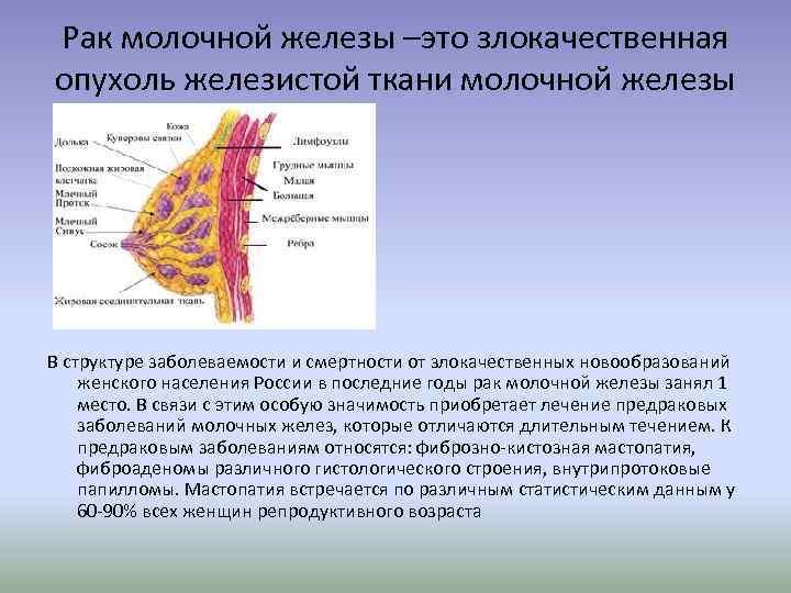 фиброзно железистая мастопатия