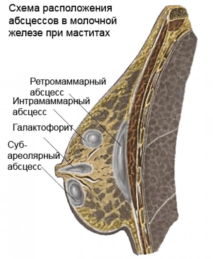 Мастит – симптомы, которые укажут на воспаление молочной железы