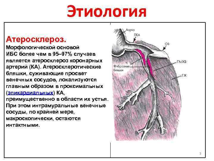 атеросклероз аорты венечных артерий