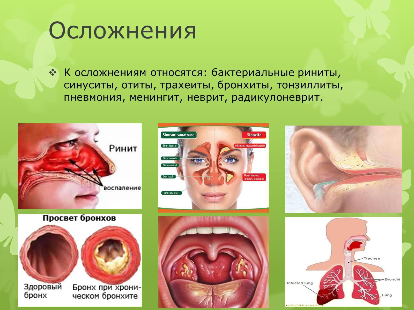 Бактериальный насморк у ребенка