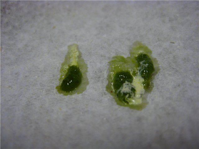 кашель с зеленой мокротой