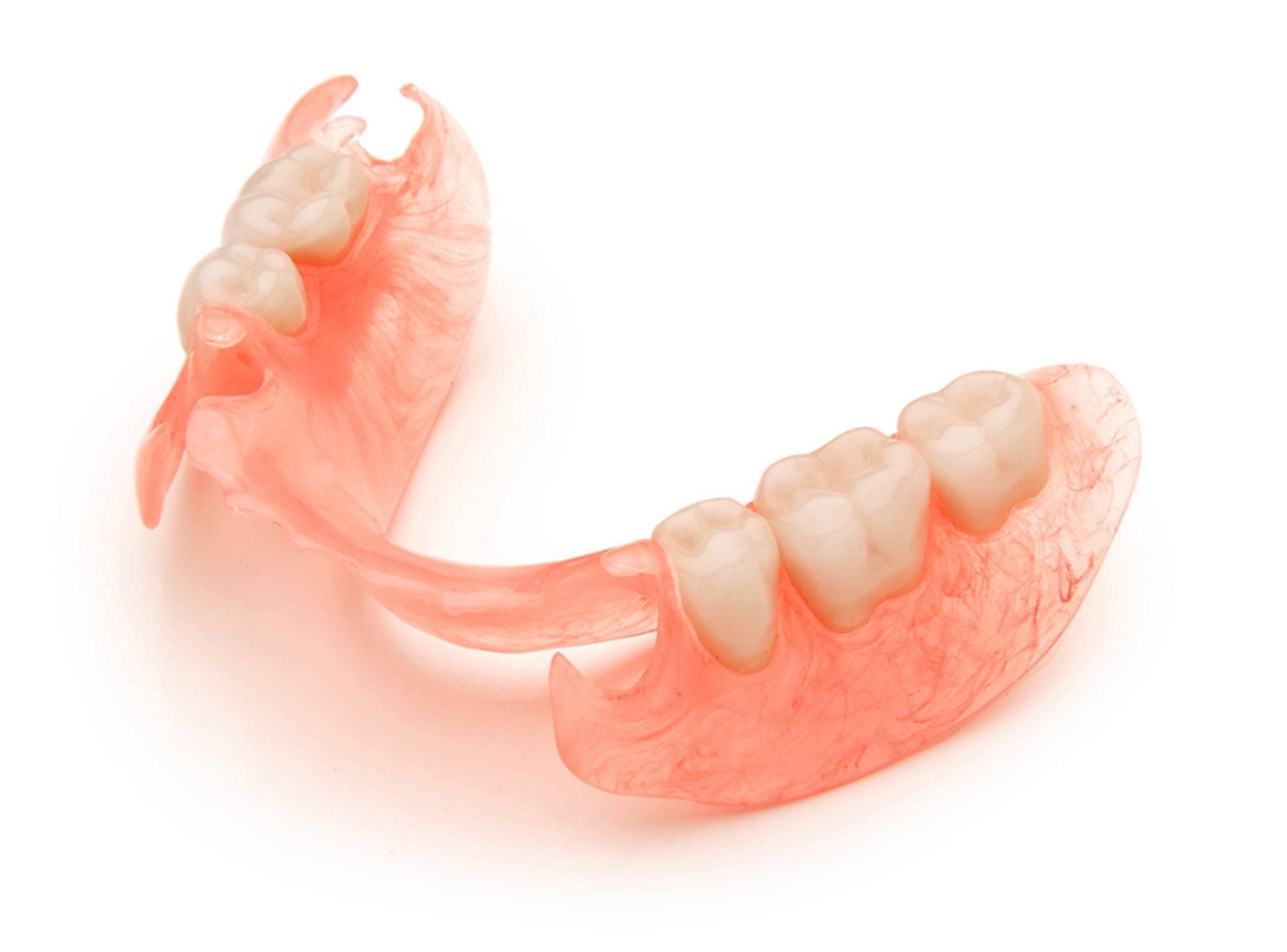 Зубные протезы на верхнюю челюсть