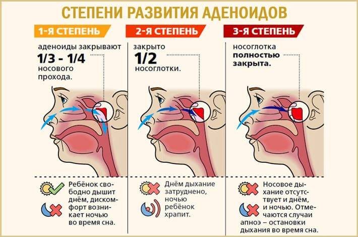 небулайзер при аденоидите у ребенка
