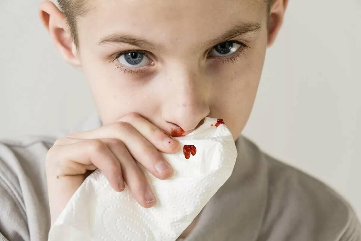 Течет кровь из носа ночью причины. что делать если идет кровь из носа ночью? как правильно оказать помощь