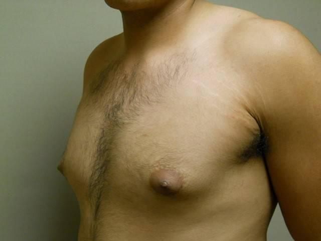 Гинекомастия у мужчин — симпотомы, причины, лечение