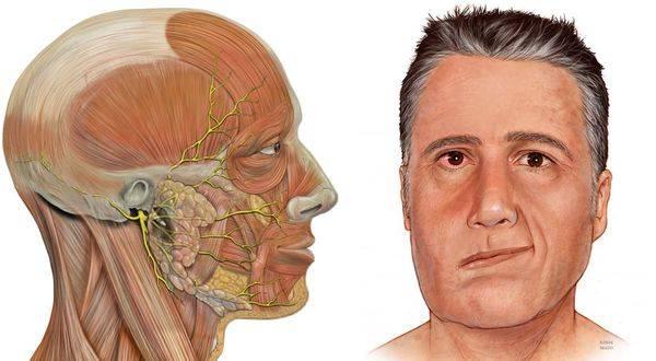 Невралгия симптомы у детей