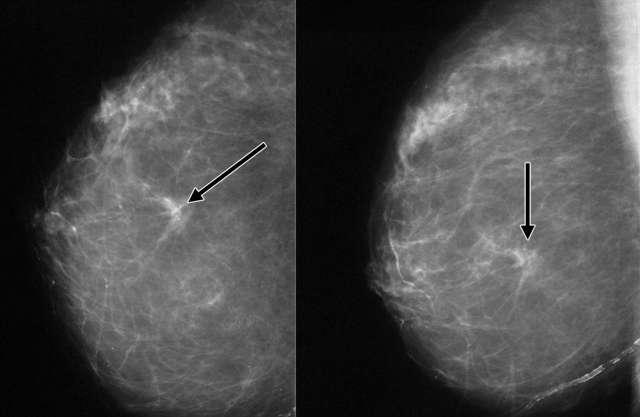 третья стадия рака молочной железы