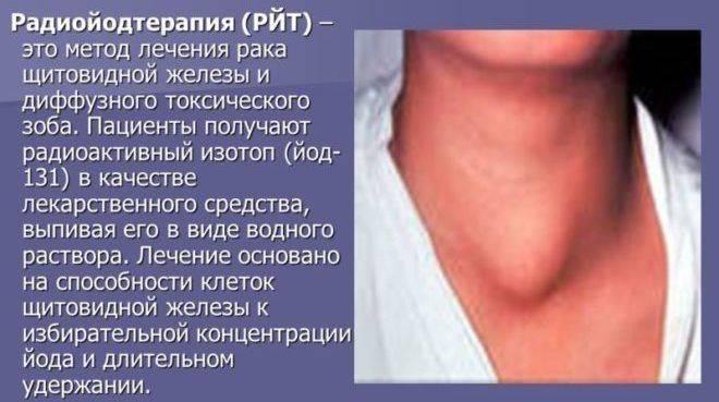 Рак щитовидной железы — сколько живут с таким диагнозом
