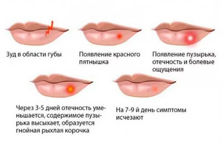 Генитального герпес: причины рецидива