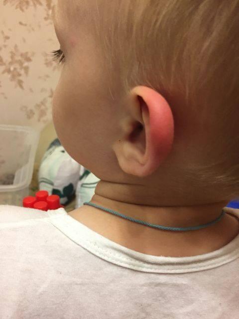 У ребенка опухло ухо снаружи