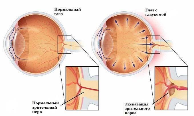 лечение глаукомы народными средствами и методами