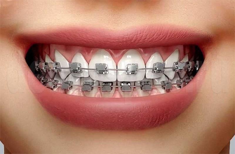 Брекеты и их виды: плюсы и минусы различных ортодонтических систем