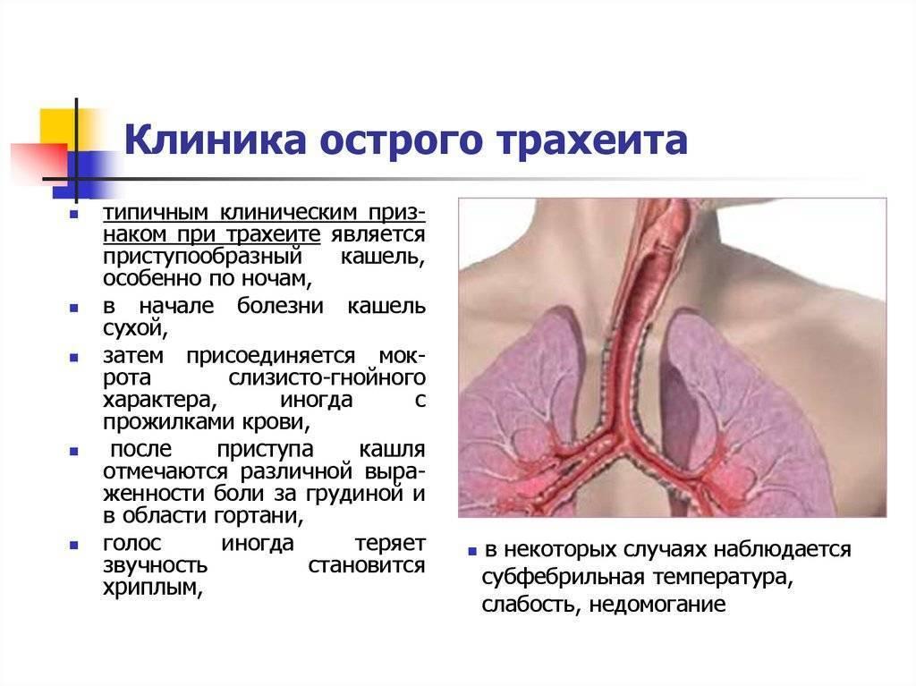 опухоли трахеи