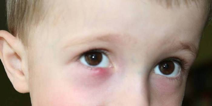 почему у ребенка слезится один глаз