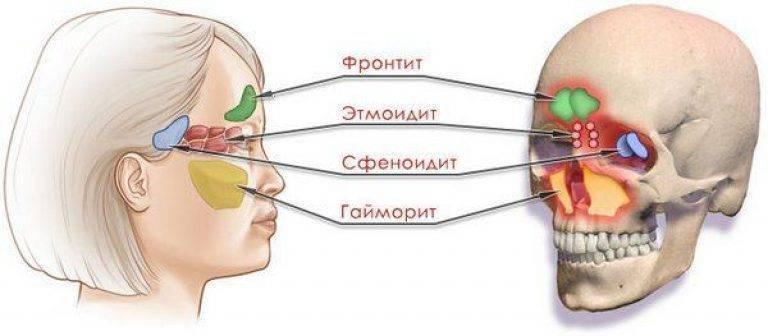 Сфеноидит – симптомы, лечение в домашних условиях. какие средства помогут в лечение для детей и взрослых - lechilka.com
