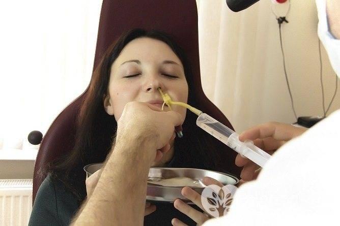 Лечение гайморита при беременности и гв - 7 способов
