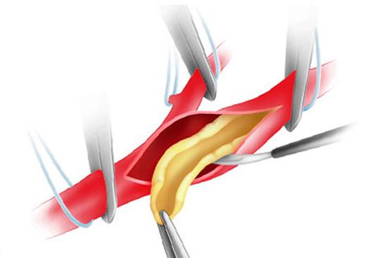 Операция на сонной артерии: когда обязательна, варианты, как проводится, осложнения, реабилитация