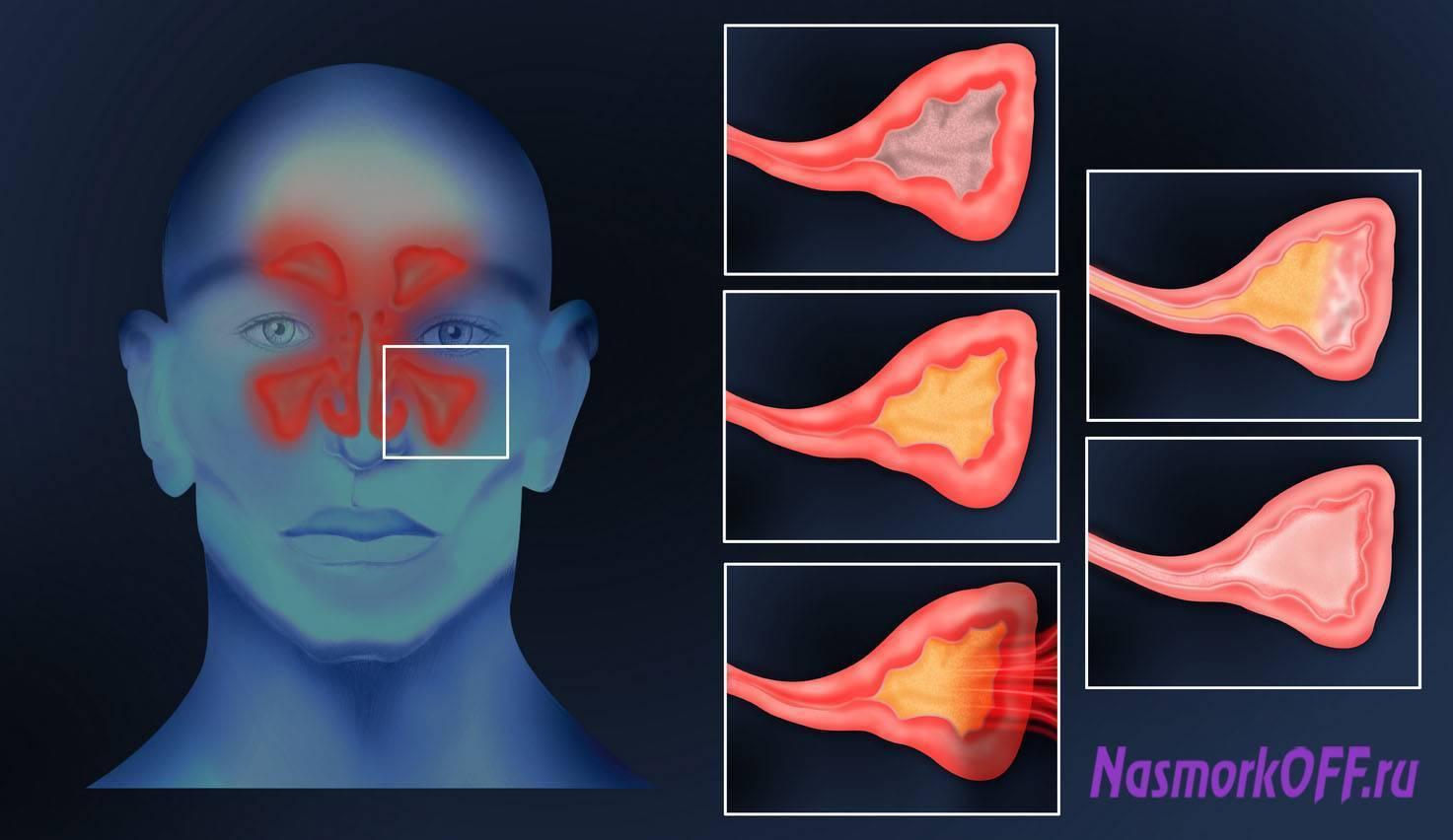 Острый верхнечелюстной синусит: основные симптомы и лечение — симптомы