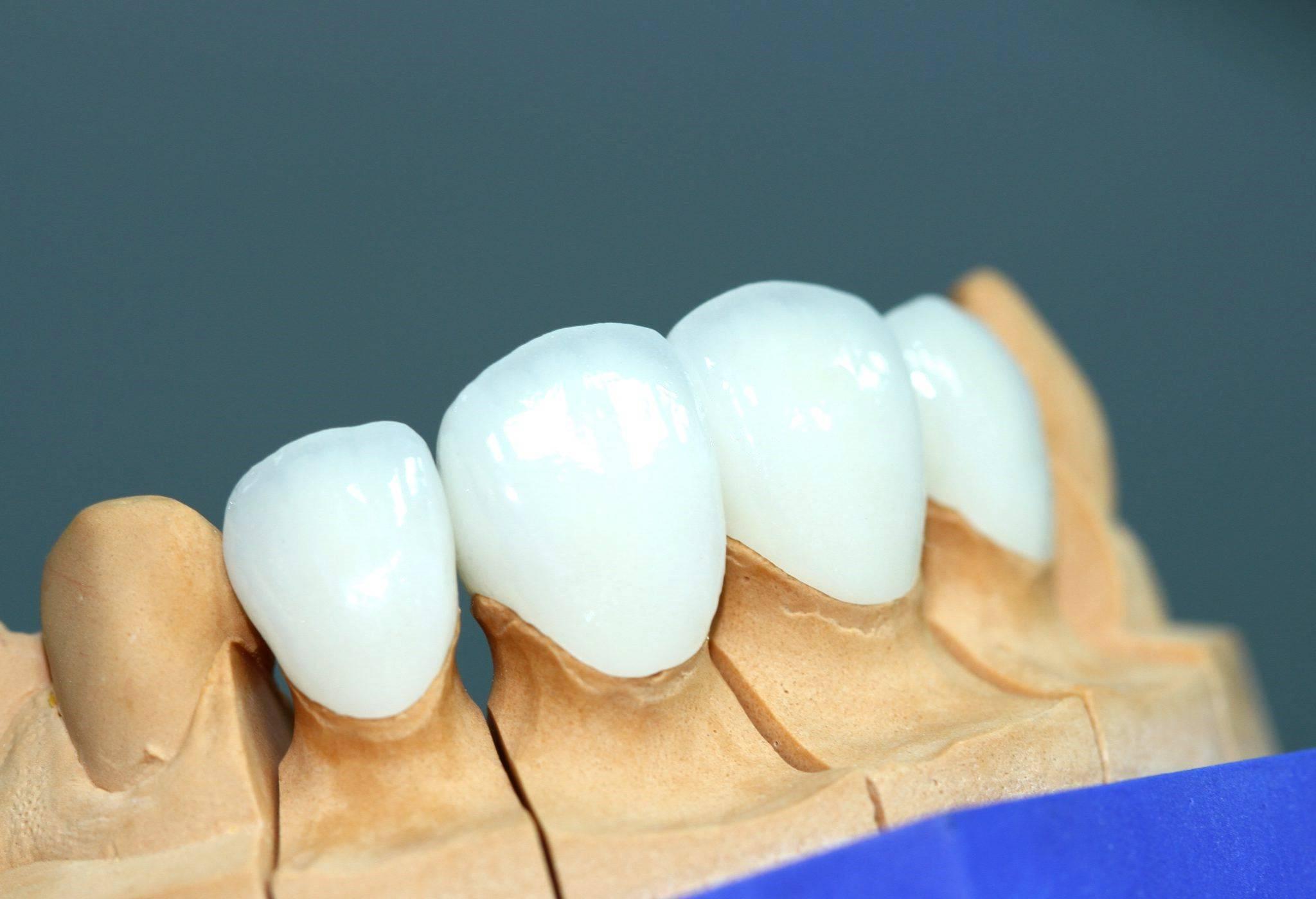 стоматология виниры