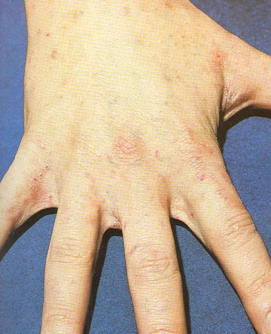 Чесотка у детей – что это такое и как лечить | портал о кожных заболеваниях