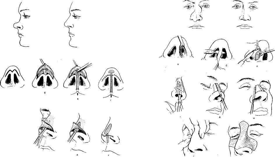 репозиция носа