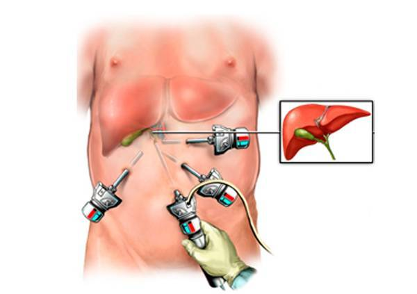 физические нагрузки после удаления желчного пузыря лапароскопия