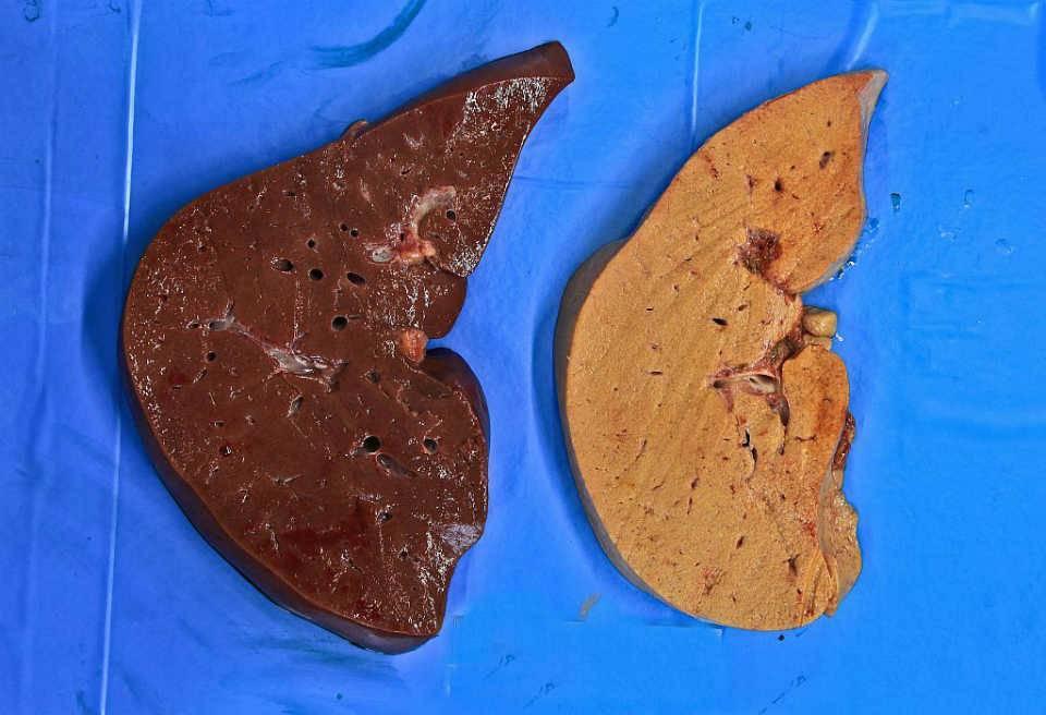 Жировой гепатоз печени – что это такое и чем его лечить?