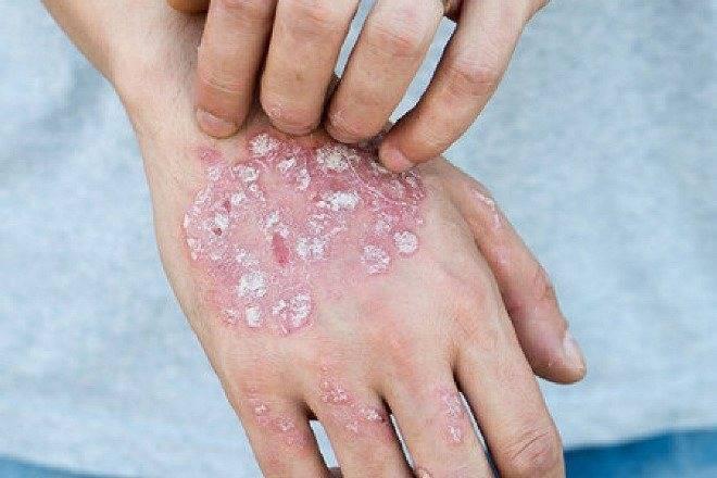 Наиболее эффективные народные средства для лечения подошвенного псориаза