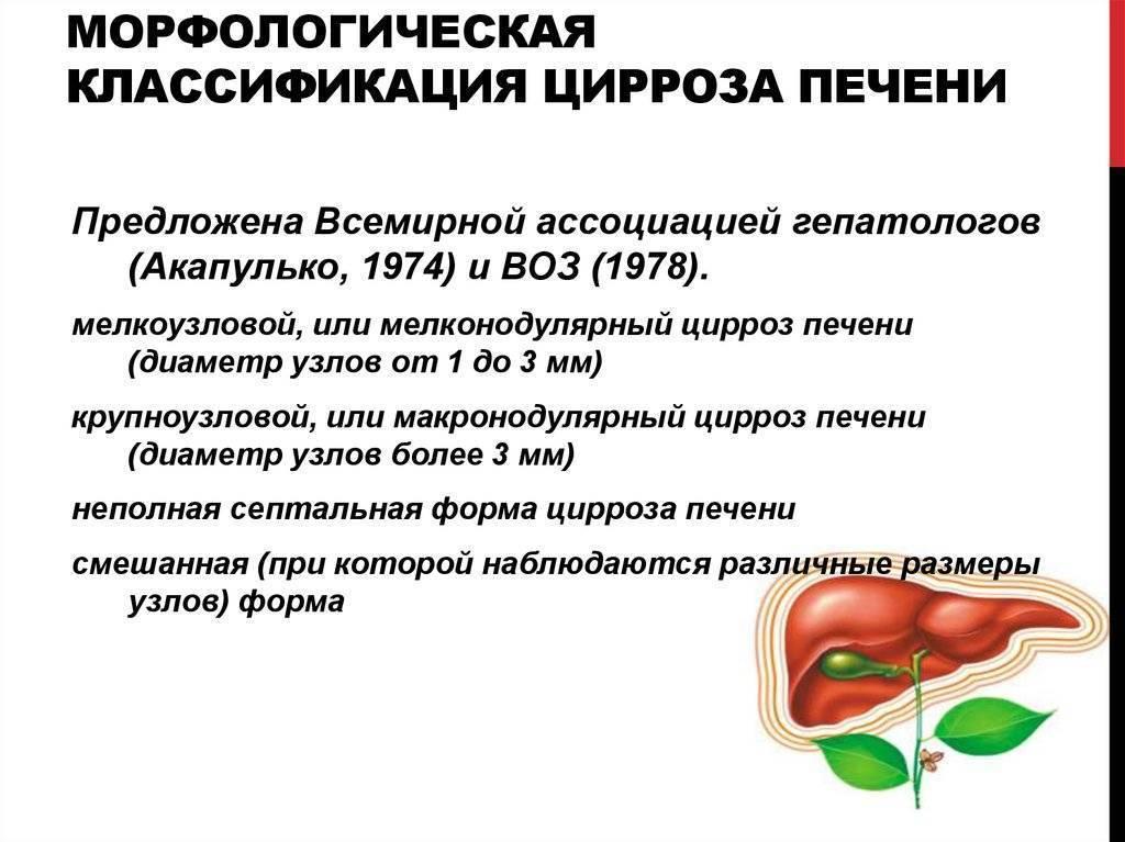 Вирусный цирроз печени: причины, симптомы, диагностика и лечение