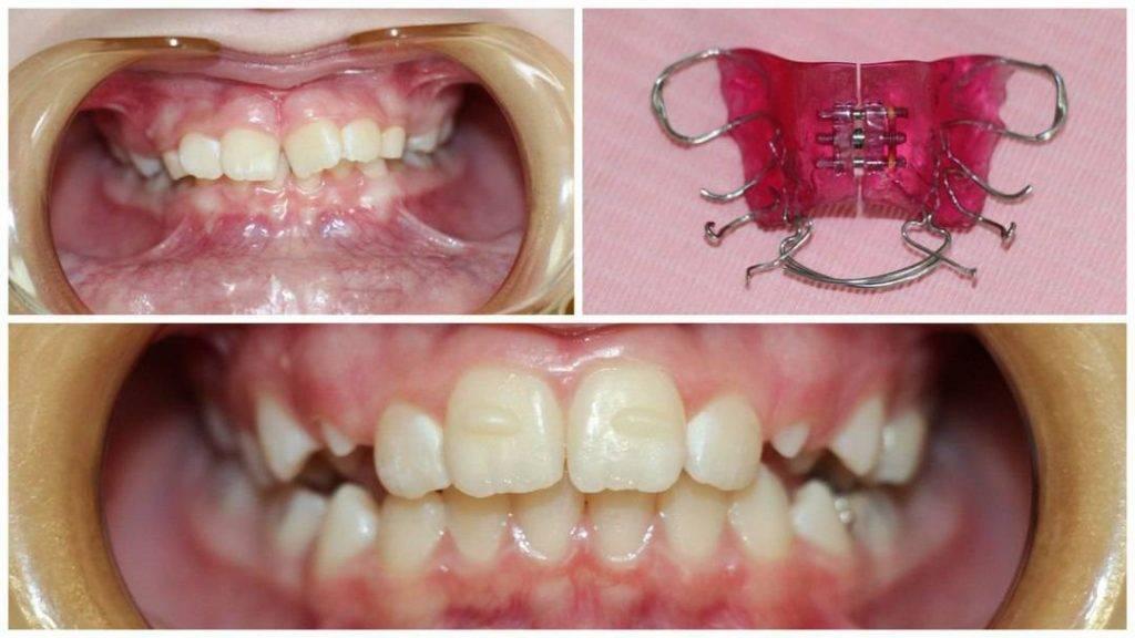 Зубы после брекетов разъехались. что делать?