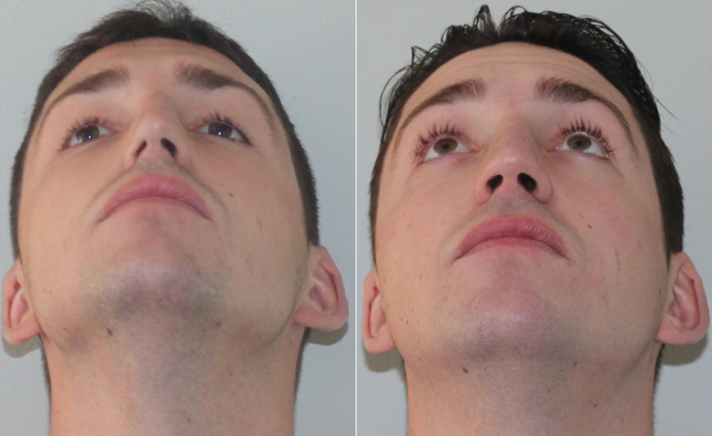 исправить перегородку носа
