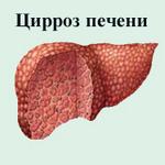 Цирроз печени заразен ли