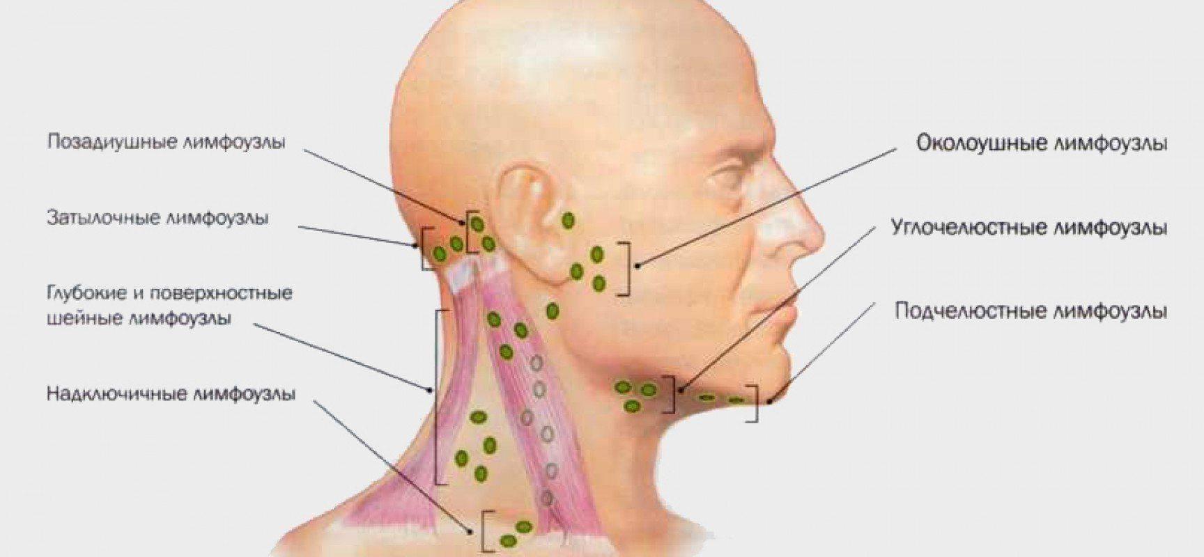 Почему при ангине увеличиваются шейные лимфоузлы?