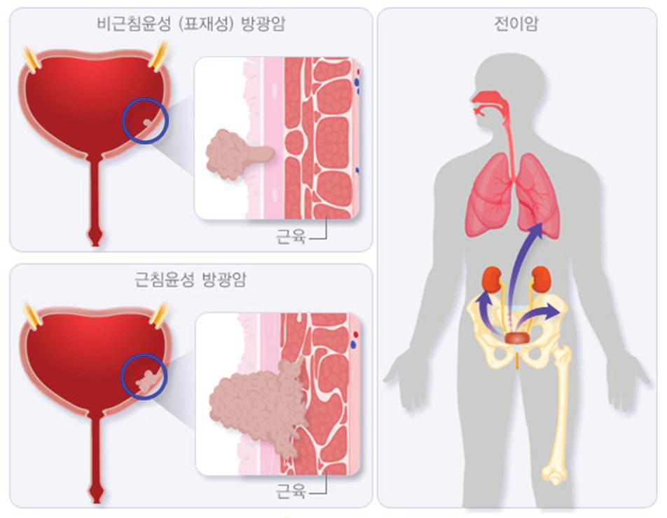Кровь в моче при цистите: причины, признаки, терапия