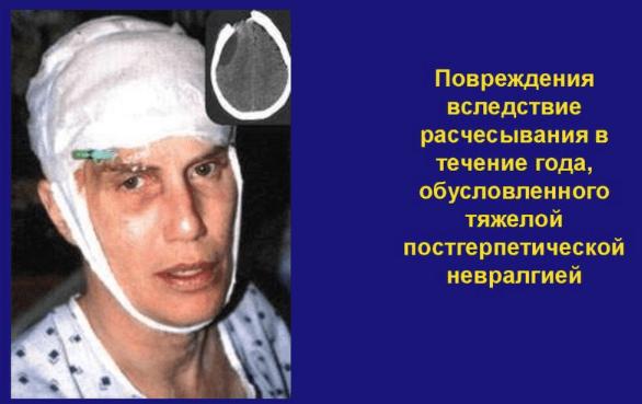 Симптомы и лечение постгерпетической невралгии