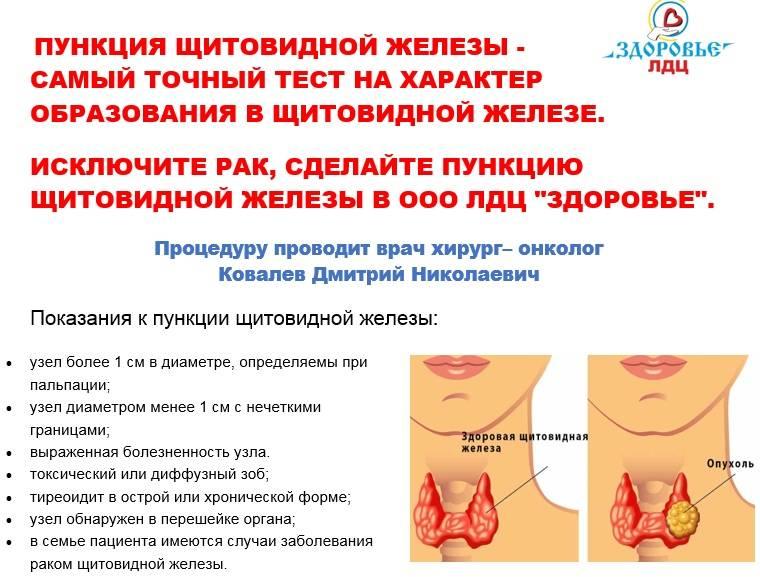Пункция щитовидной железы. последствия