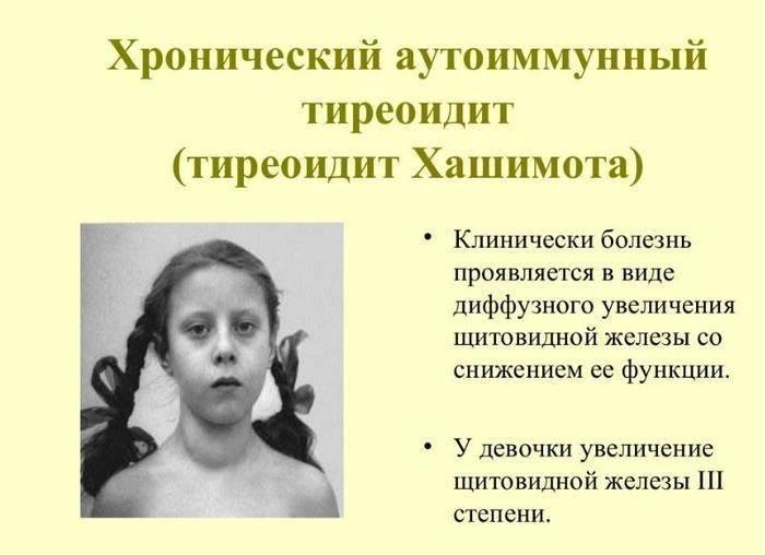 Тиреоидит щитовидной железы у детей и взрослых