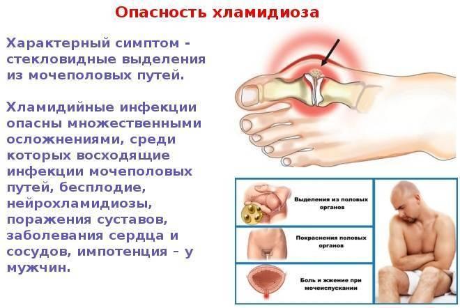 Хламидиоз (хламидийная инфекция) - описание болезни