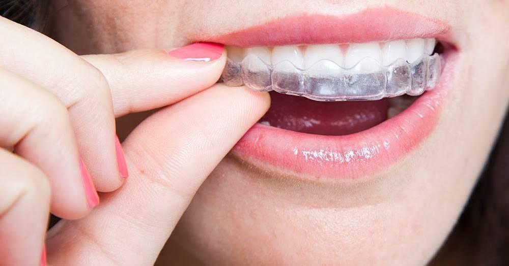 Выпрямление зубов взрослым пациентам – брекеты или капы?