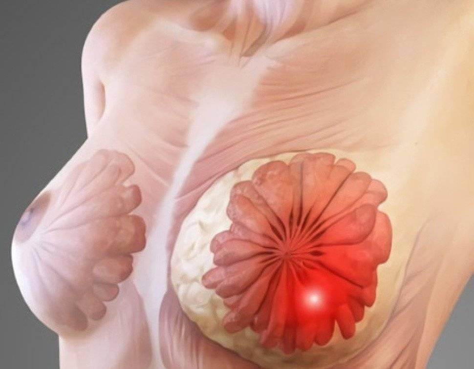 заболевания молочных желез у женщин симптомы