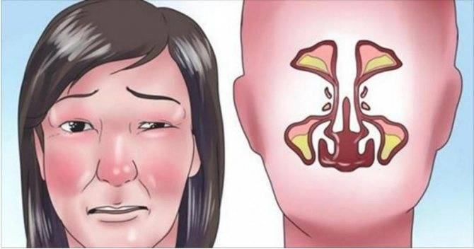 Заложенность носа по утрам (взрослые)