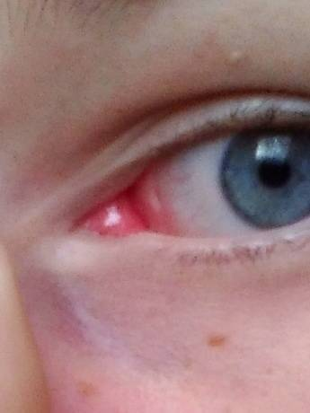 У ребенка покраснел белок глаза в уголке. что делать родителям в этой ситуации