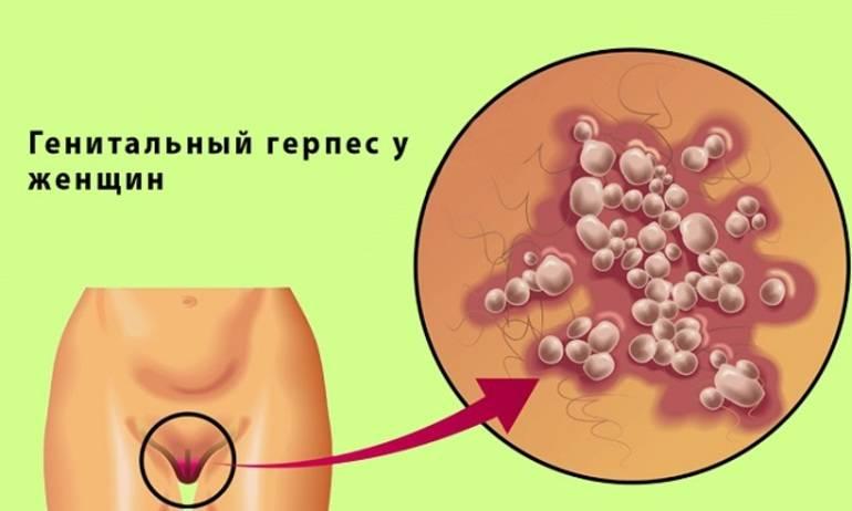герпес половых губ лечение
