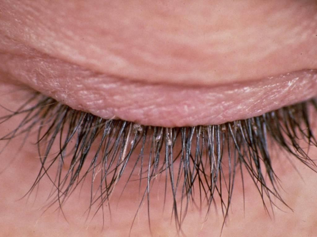 Лечение демодекса век и ресниц: симптомы, лечение демодекоза мазью