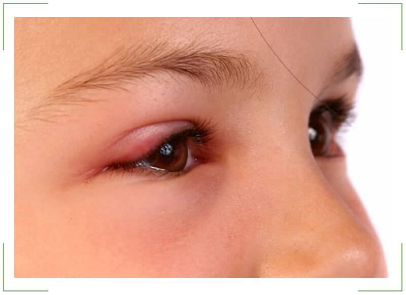Советы маме: что делать если у ребенка опухло верхнее веко?